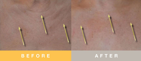 Biopelle Growth Factor Before and After Decolletage