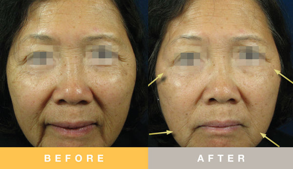 Tensage Growth Factor - Before & After - FACE