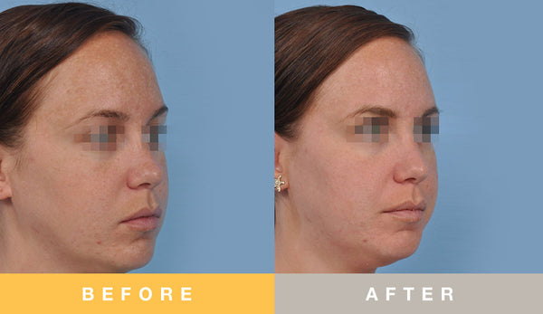 Biopelle Professional Exfoliating Brightening Kit Before & After
