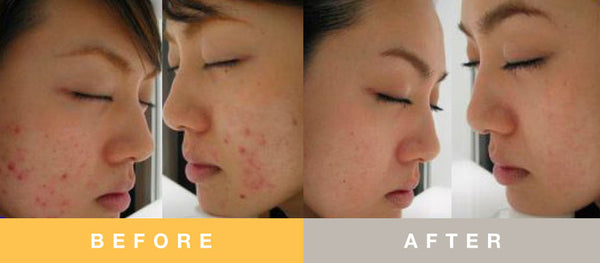 Prescribed Solutions Blemish Control Acne Prone Before and After