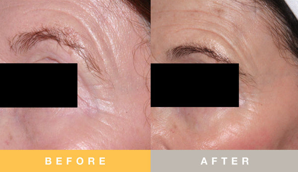 Prescribed Solutions Eye Concerns / Photoaging Before and After