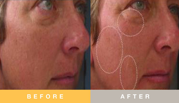 Prescribed Solutions Photoaging Before and After