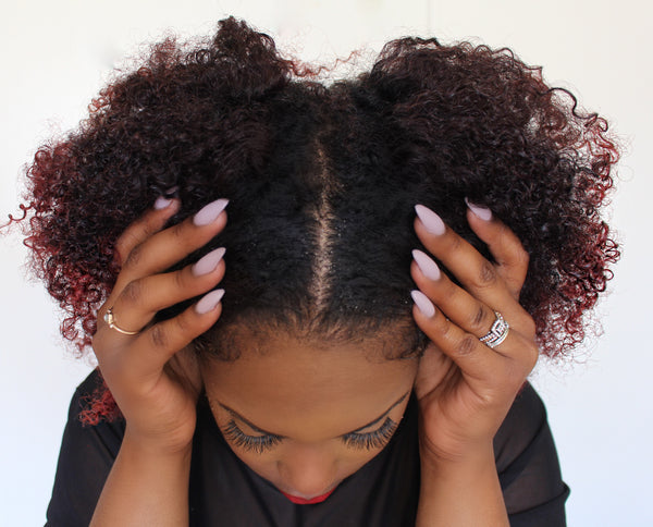 No More Flakes! Basic Tips For Treating Dry Scalp & Dandruff