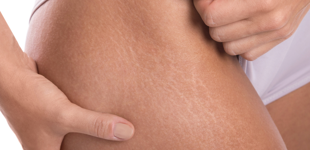How to get rid of stretch marks Evolve Organic Beauty