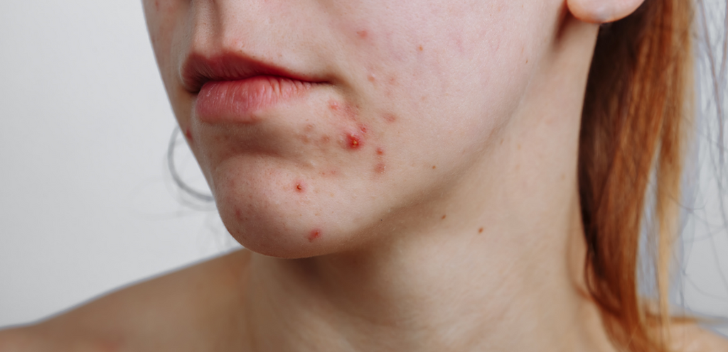 How to get rid of pregnancy acne Evolve Organic Beauty