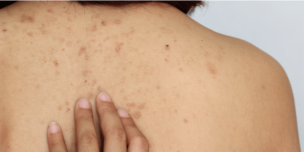 How to get rid of bacne and back spots