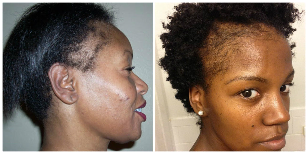 Protect Your Hair Edges with Right Installations