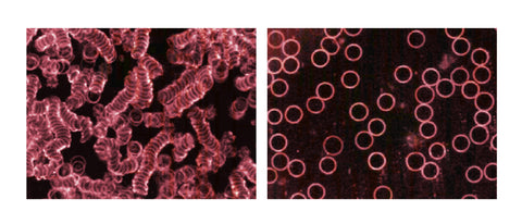Dark-Field Blood Image With & Without Green 8 Evolution