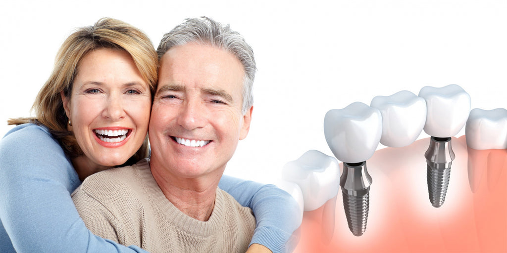 DENTAL IMPLANT CARE & MAINTENANCE