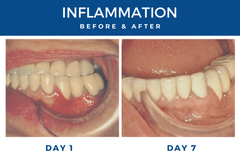 inflammation before & after