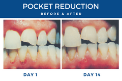 perio pocket reduction before & after