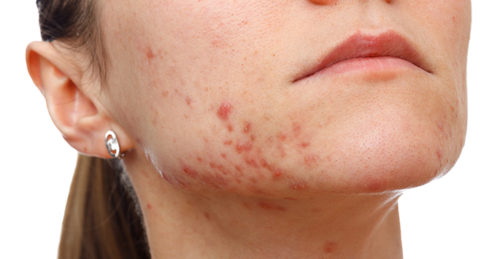CBD oil can be used to treat chronic acne.