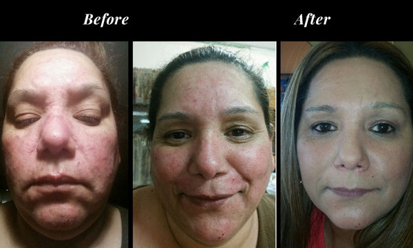 Subject 41, 35 yrs. old, 4 weeks of use - 2x per day, second image is 30 day without makeup, 3rd image is 30 days with makeup.