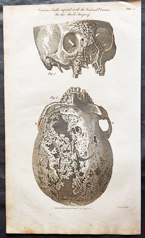 1798 William Henry Hall Large Antique Print of a Syphilitic Human Skull