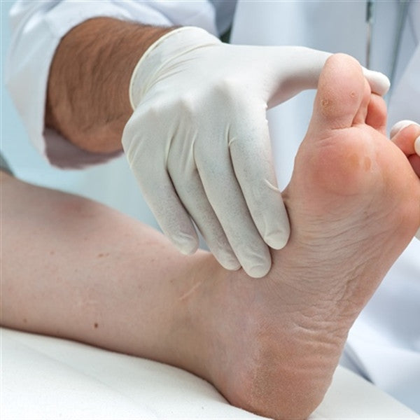 BLISTERS, CORNS OR CALLUSES, CLAVUSES
