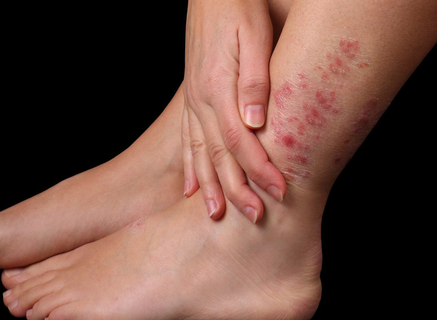 Psoriasis - triggers and prevention