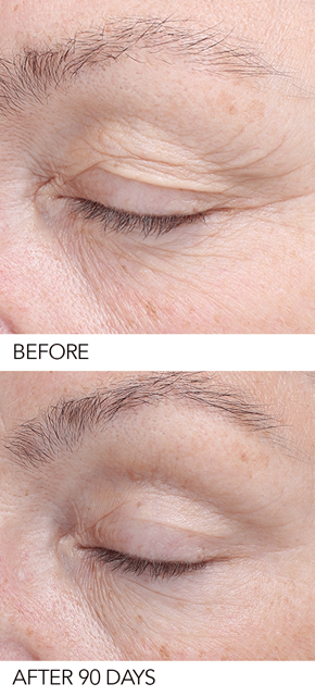 BIOEFFECT EGF SERUM before and after photo, anti aging serum that works