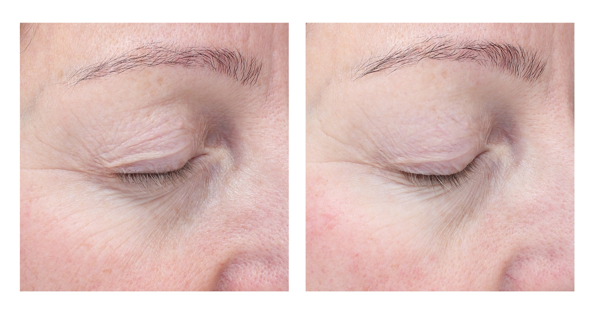 Before and after shot of a person's eye with visibly fewer wrinkles after using BIOEFFECT anti-aging products