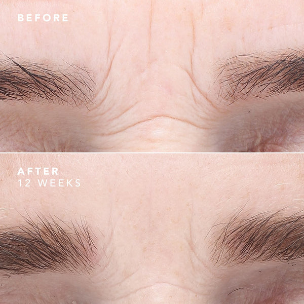A before & after image of the brow area with the usage of EGF Serum. The after image shows significantly less wrinkles.