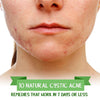 10 Natural Cystic Acne Remedies that Work in 7 Days or Less