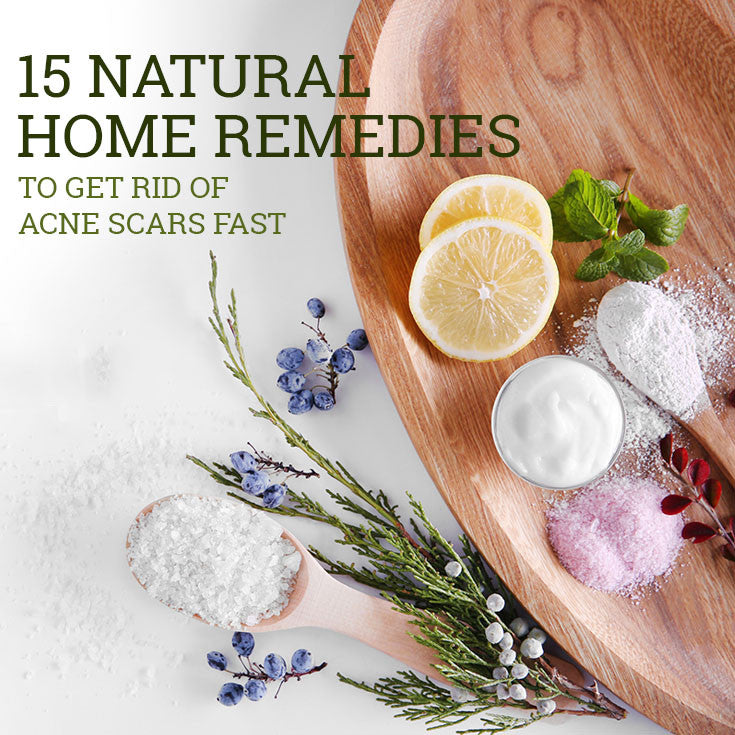 15 Natural Home Remedies to Get Rid of Acne Scars Fast