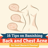 16 Tips on Banishing Back and Chest Acne for Good (Bacne & Chestne)