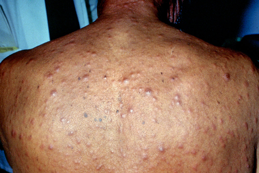 How To Treat Back Acne?