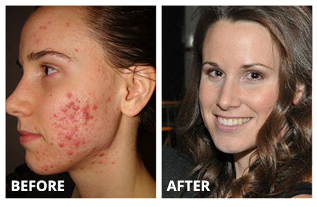 How To Get Rid Of Red Acne Scars?