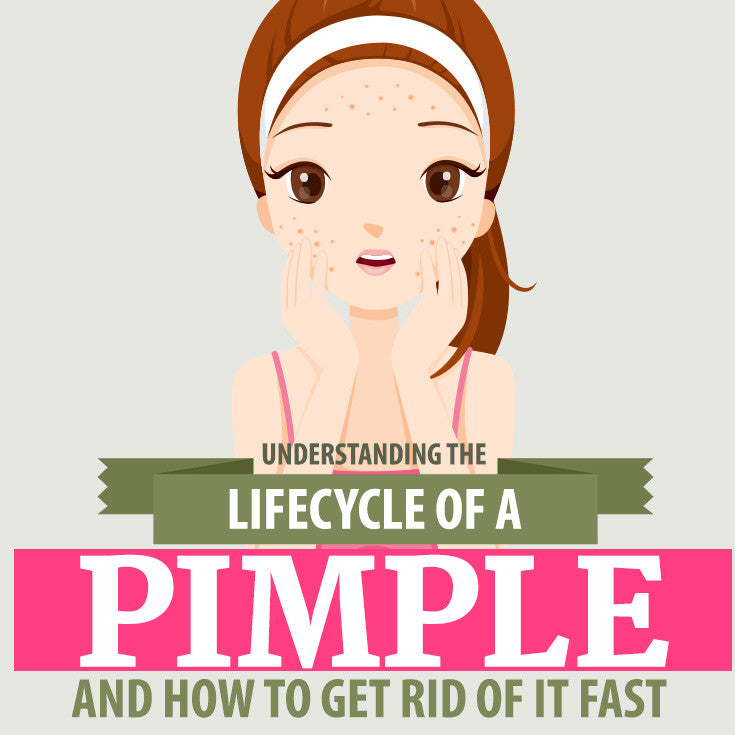 Understanding the Life Cycle of a Pimple and How to Get Rid of it Fast