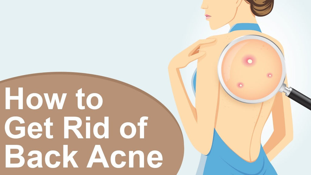 How To Get Rid of Back Acne in A Day?