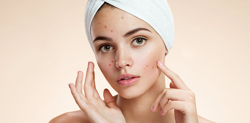 Does Tea Tree Oil Help Reduce Acne?