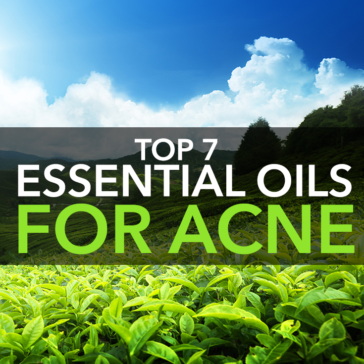 Top 7 Essential Oils for Acne