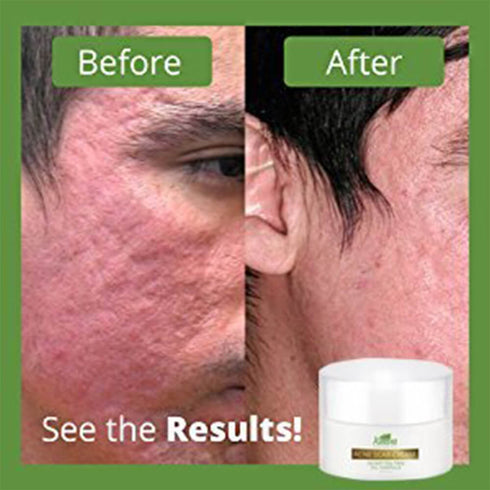 Best Acne Scar Removal Cream Tea Tree Oil Organic Ingredients Keeva Organics