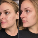 "[Buy 1 Get 1 FREE Sale!] Get The Clear, Acne-FREE Skin You Deserve In 30 Days Or Less With Keeva's ""7x Faster"" Organic Acne System. Includes Patented Acne CREAM, SERUM, FACE WASH + FREE BONUS (DERMA ROLLER) When You Order Today!"
