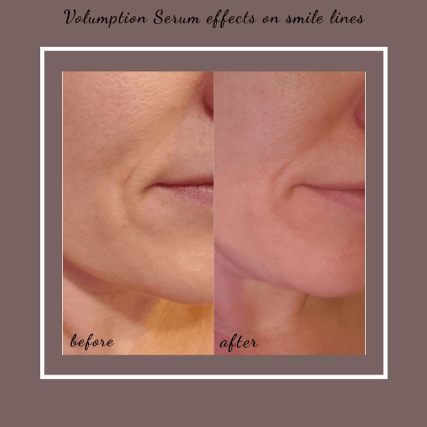 Volumption-All Natural Organic Plumping Serum, Use On Face, Neck And Around Lips. Adds Volume To Subcutaneous Fat-Helping Diminish Wrinkles, Fine Lines Shallow Contours And Skin Folds.