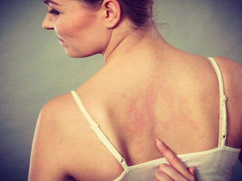 3 Effective Steps to Getting Rid Of Eczema