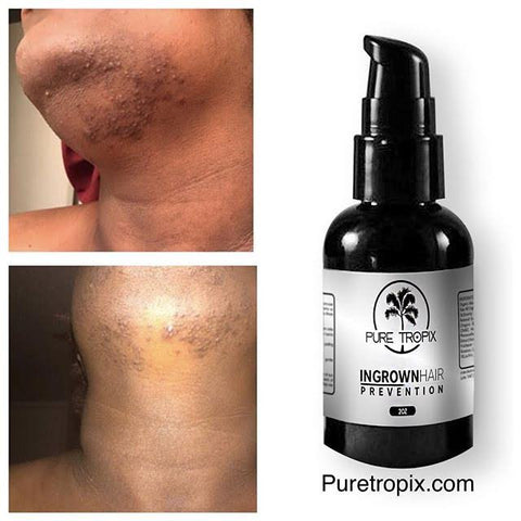 pure tropix ingrown hair prevention