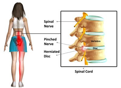 sciatica never pain in leg