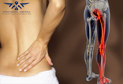 What is Sciatic Pain - best ways to treat it