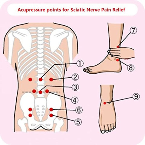 Sciatica TENS placement for treatment