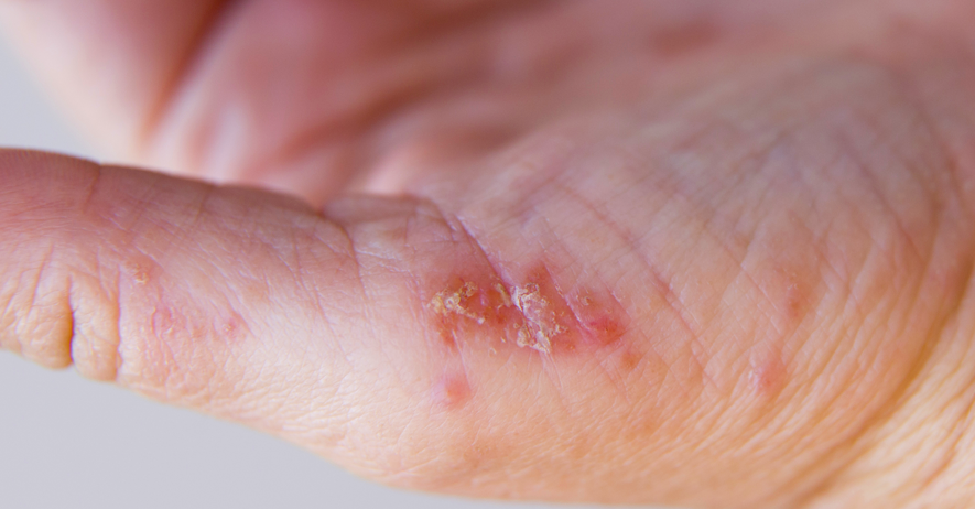 Contact dermatitis caused by cheap disposable gloves