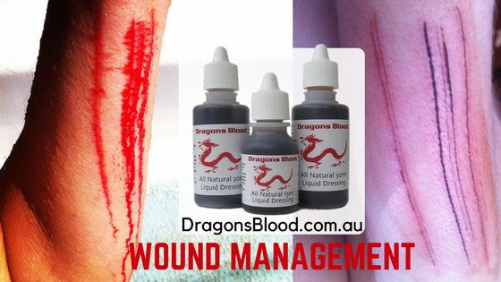 Natural Wound Management System in a Tiny Bottle - Dragons Blood - My Most Frequently Used Herbal