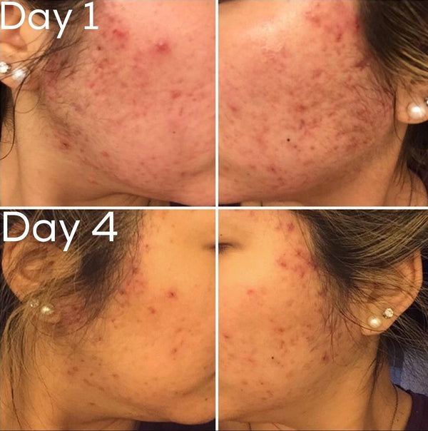 Timeless 3-Step Acne System - Vegan Concept