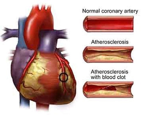 Atherosclerosis Image-Clean Air Plus