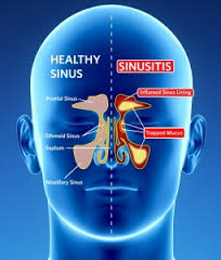 Sinusitis Image-Clean Air Plus