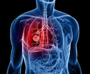 Lung Cancer Image-Clean Air Plus