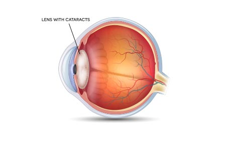 diabetes complications vision cataracts