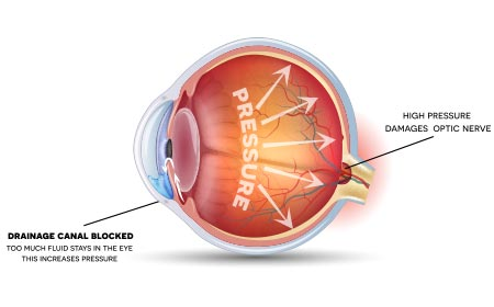 diabetes complications vision glaucoma