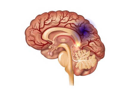 diabetes stroke brain diseases complications