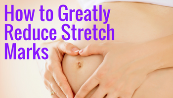 How To Reduce Unsightly Stretch Marks Using Clinically Proven Ingredients